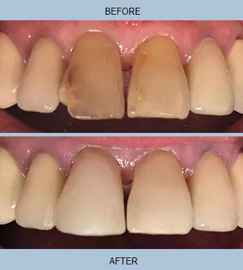 Dental Bonding Before/After