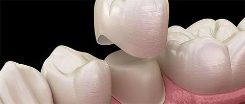Dental Crowns in Guymon, OK - Thrall Dental Care