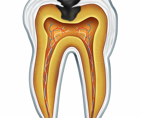 Root Canal Therapy in Guymon, OK - Thrall Dental Care