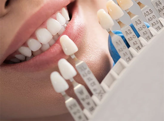 Tooth-Colored Dental Restorations in Guymon, OK - Thrall Dental Care